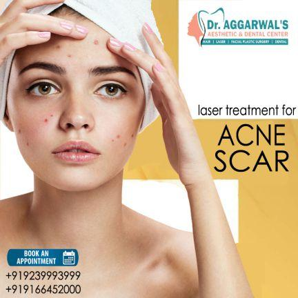 Laser Treatment for ACNE & ACNE SCARS