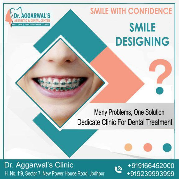 DENTAL TREATMENT Banner At Dr Aggarwals