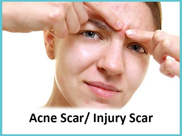Acne Scar /Injury Scar