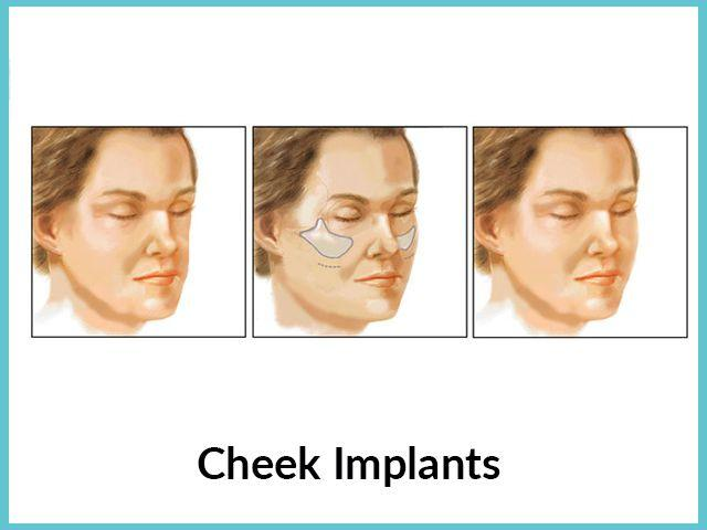 Chin-Cheek-implants