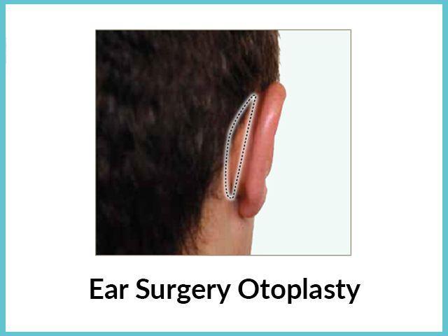 Ear surgery-otoplasty