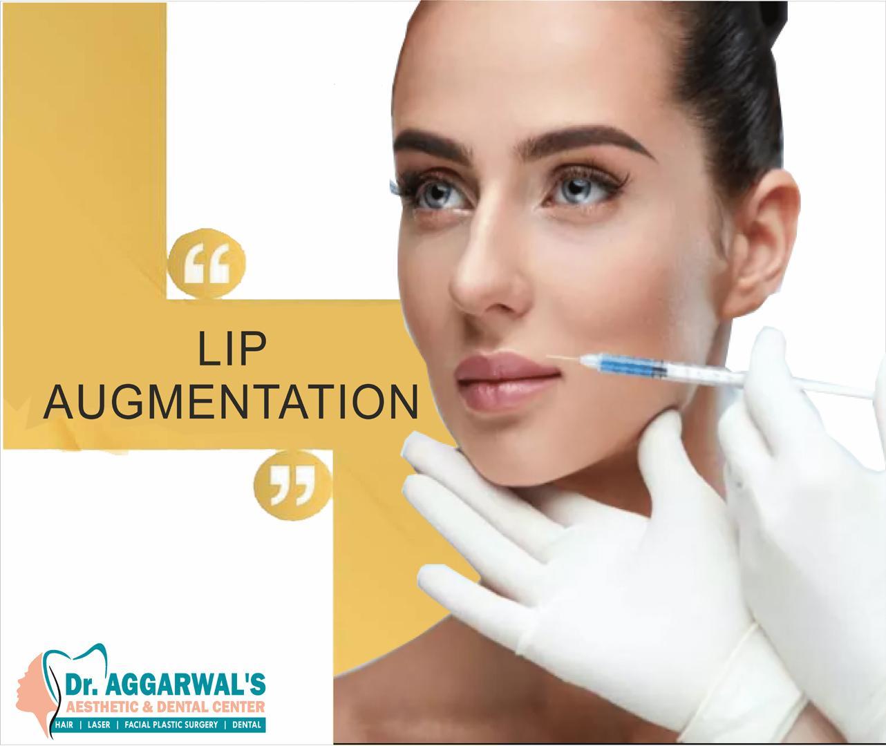 lip augment