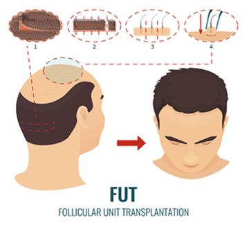 FUT-vs-FUE-Hair-Transplant-1 copy