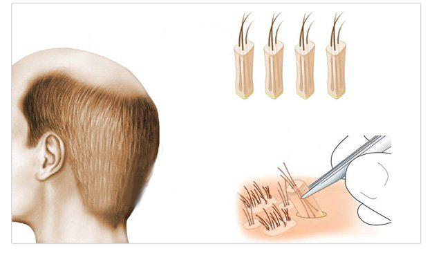 fue-follicle-unit-extraction-technique-dr-andre-nel