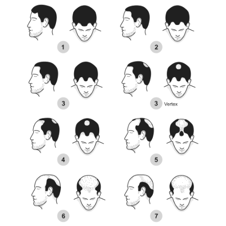 seven-stages-of-male-pattern-baldness