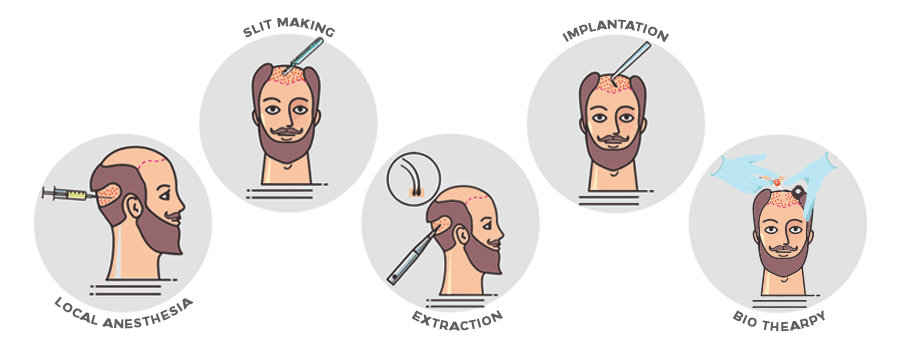 steps-of-bio-fue-hair-transplant