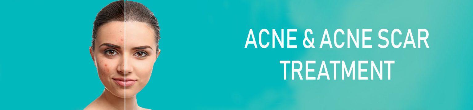 ACNE-AND-ACNE-SCAR-1536x360 copy