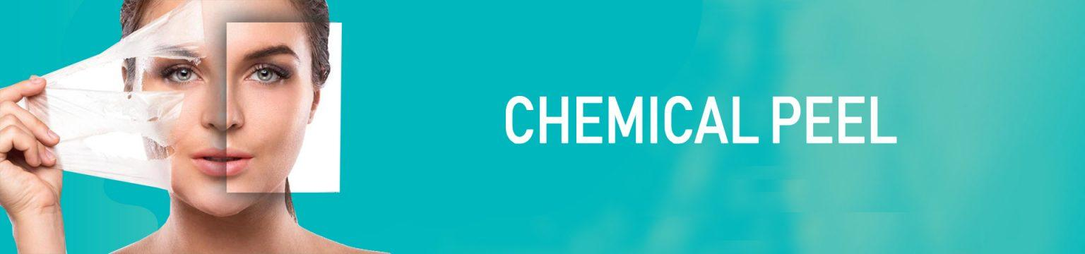 CHEMICAL-PEEL-1536x360