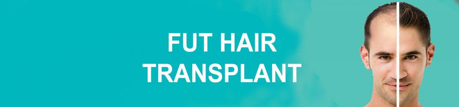 FUT HAIR TRANSPLANT 1 2 copy