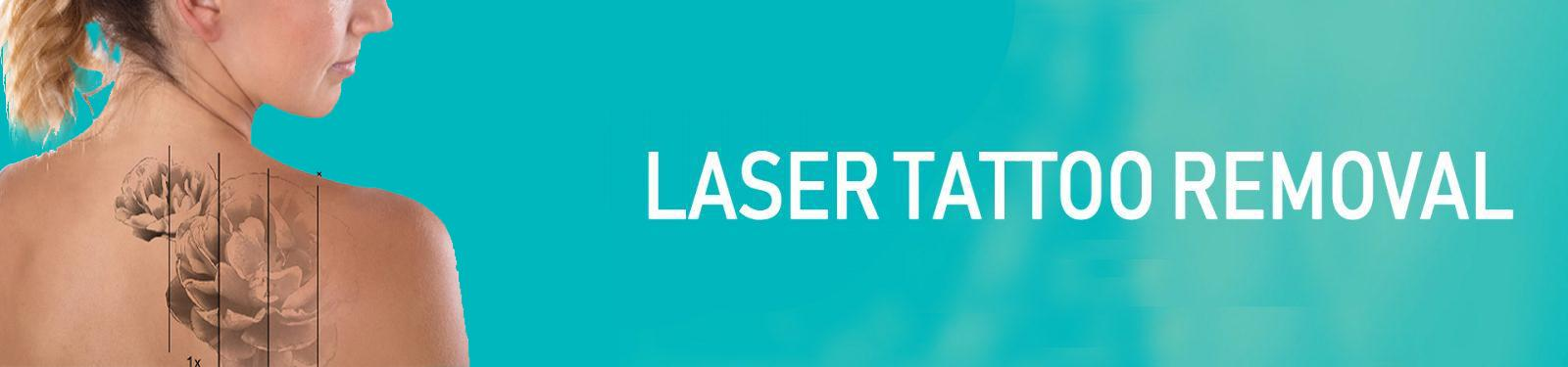 LASER-TATTOO-REMOVAL copy