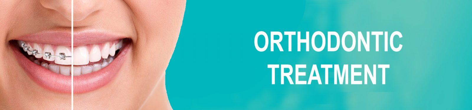 ORTHODONTIC TEATMENT