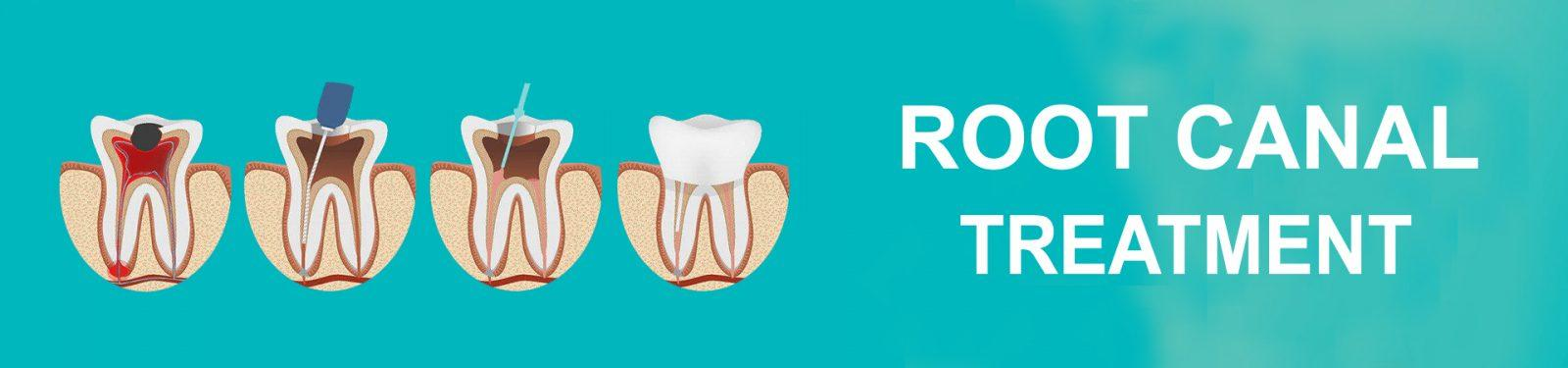 ROOT CANAL copy