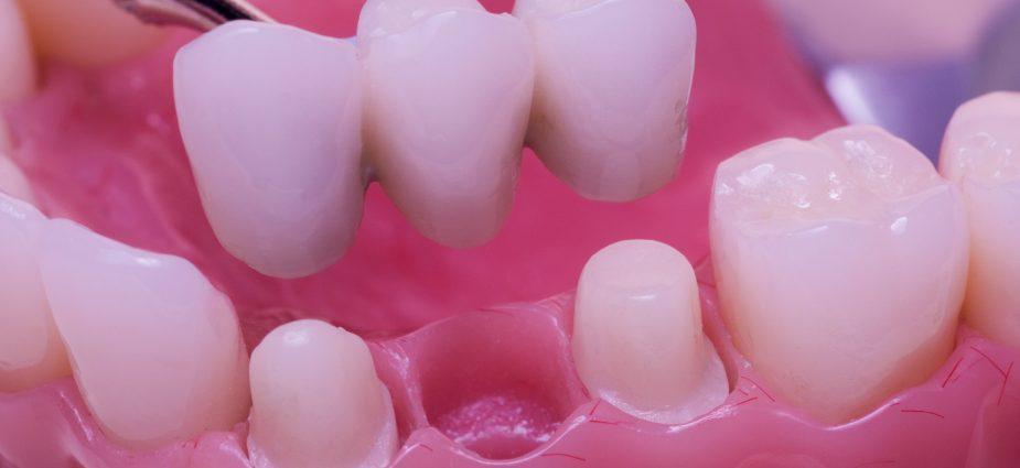 dental-bridges-min-925x425