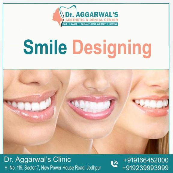 smile-designing1asfagplaekgfoi0ADJGFSADH
