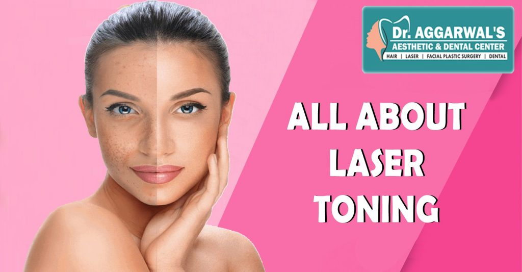 Laser Toning – A Procedure for pigmentation-free skin