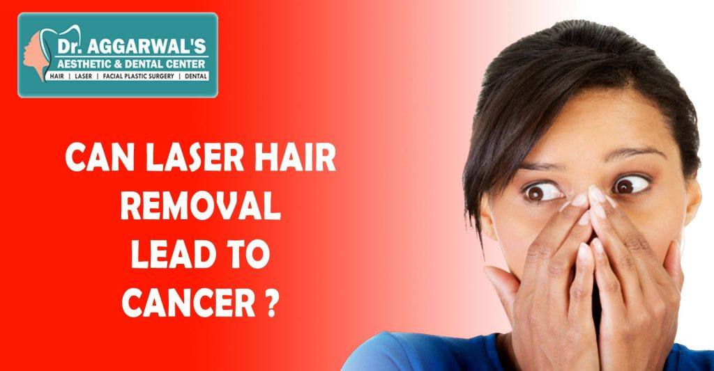 Could Laser Hair Removal Cause Cancer?