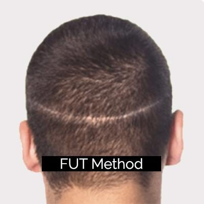 FUT Method