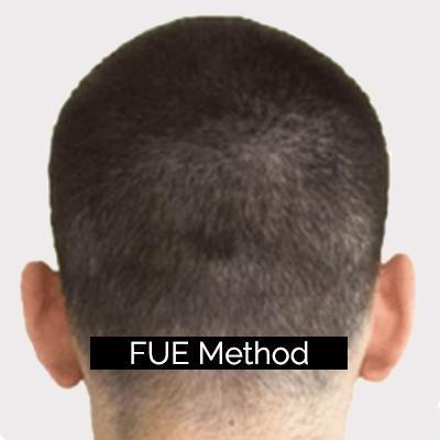 fue method