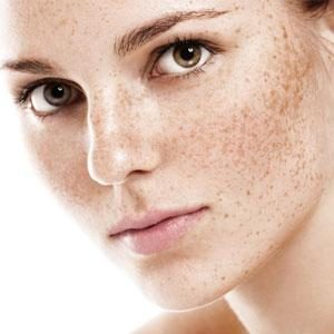 skinqure.in604Laser-for-pigmentation